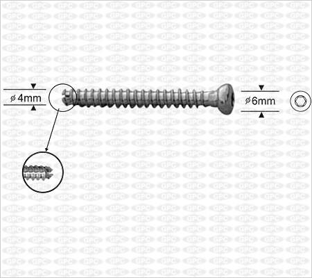 Tornillo de Esponjosa Canulado Pequeño 4.0mm, Boca Hexagona, Totalmente Roscado